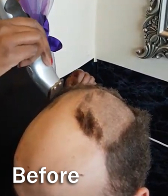 Mens Hair Replacement - Before