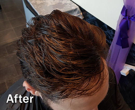 Mens Hair Replacement - After