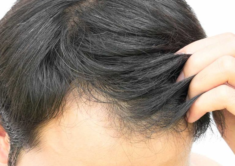 Non Surgical Hair Treatment FAQ