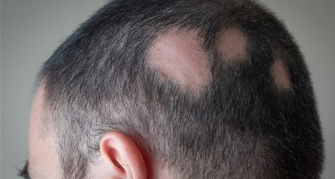 Hair Loss Causes & Treatment